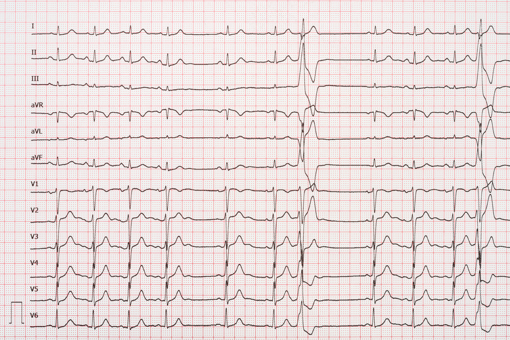 12 Lead Electrocardiogram Record Paper