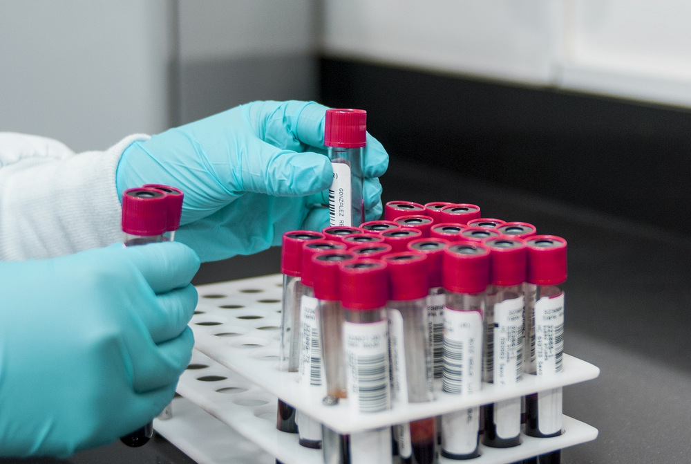Researcher wearing gloves arranging blood sample tubes in a rack